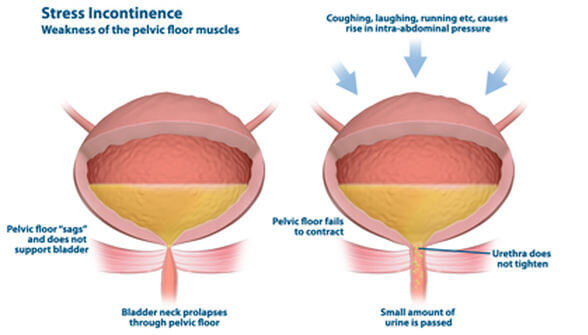 Stress Incontinence - Stop Peeing When You Work Out with Finess